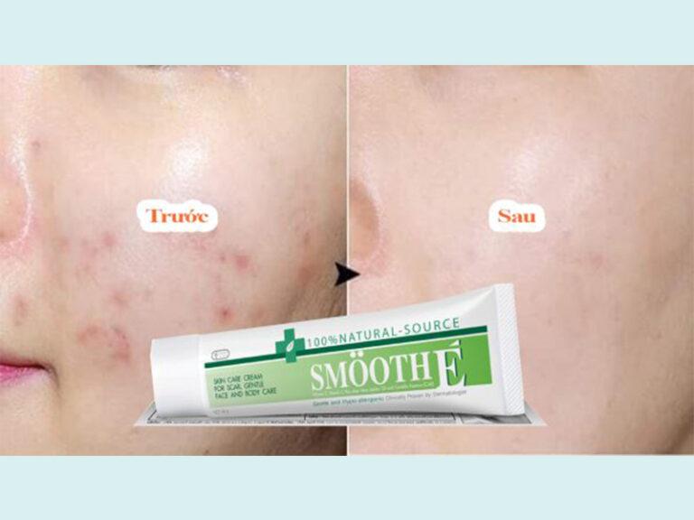 Hình ảnh trước và sau khi sử dụng kem dưỡng trị thâm mụn Natural Source Smooth